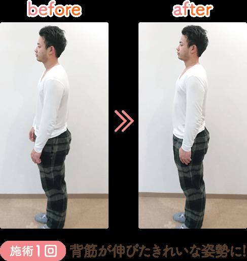 骨盤矯正フォーアフター背筋が伸びたきれいな姿勢に
